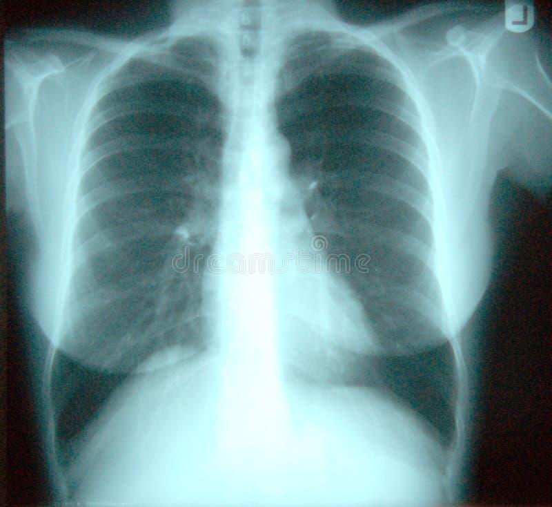 Röntgenstrahl des Kastens stock abbildung
