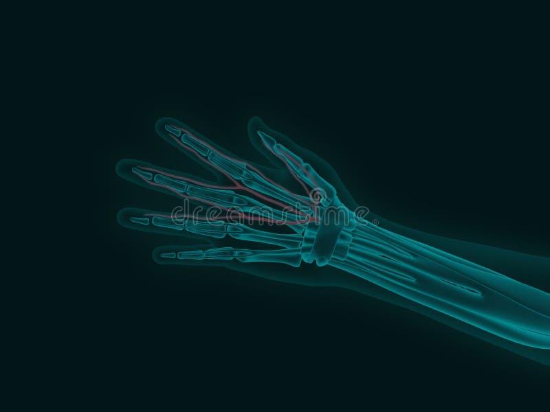 Röntgenstrahl einer menschlichen Hand mit Karpaltunnelsyndrom 3d übertragen medi lizenzfreie abbildung