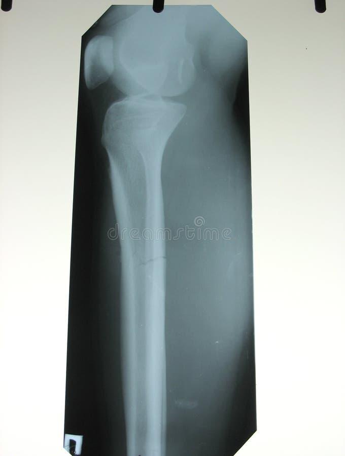 Röntgenstrahl eines Knochens des gebrochenen Fahrwerkbeines lizenzfreie stockfotos