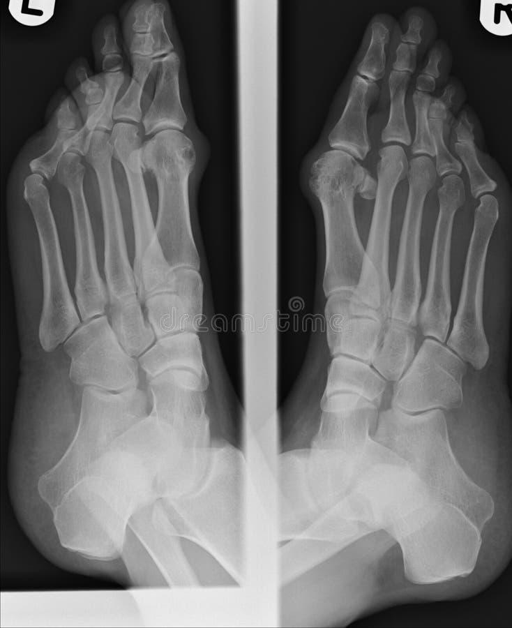 Röntgenstrahl von Bunions lizenzfreie stockfotos