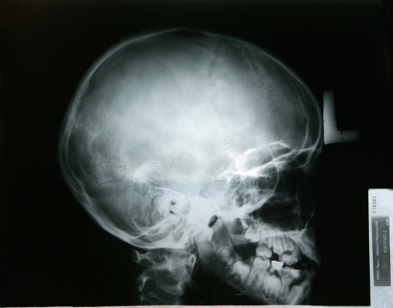Röntgenstrahl von meinem Kopf des jüngeren Bruders stockfoto