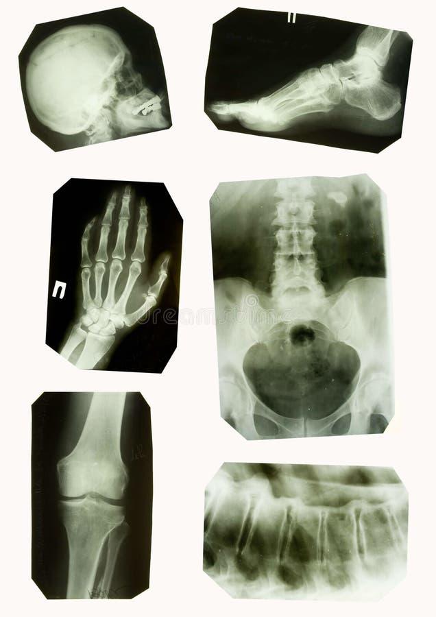 Röntgenstrahlabbildungen lizenzfreie stockfotos