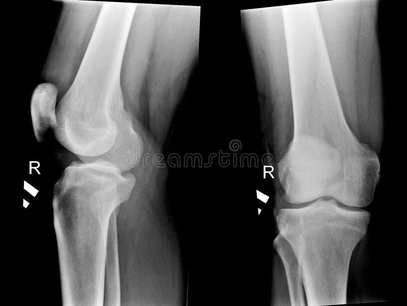 Röntgenstrahlabbildungen der menschlichen Knieverbindungen stockbild
