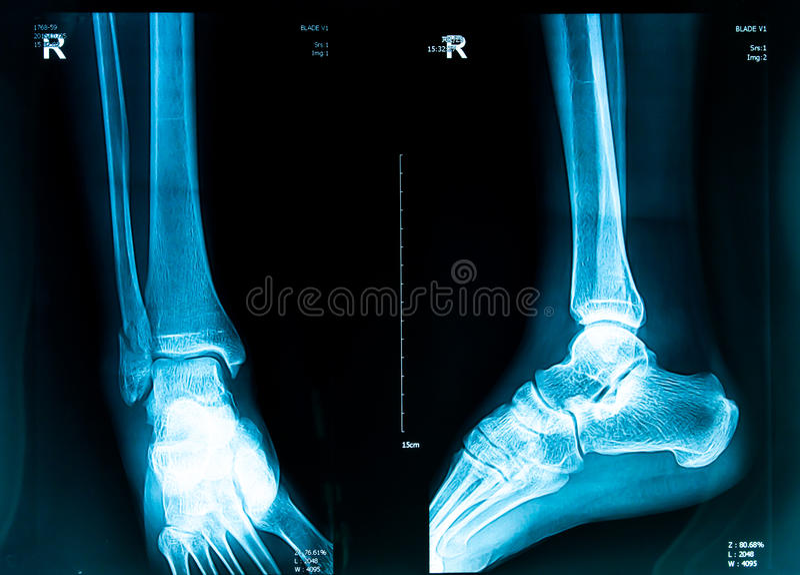 Röntgenstrahlbild lizenzfreies stockbild