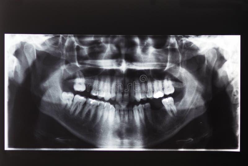 Röntgenstrahlbild von Zähnen und von Mund stockfotografie