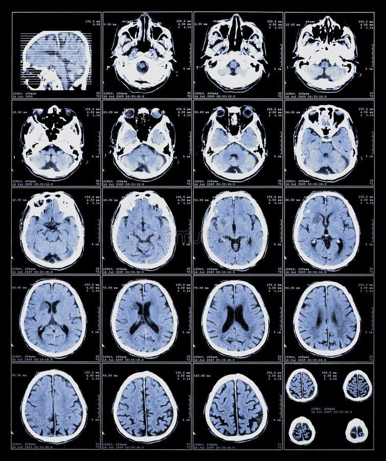 Röntgenstrahlfilm des Gehirns stockfoto