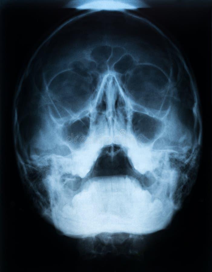Röntgenstrahlfilm eines Schädels eines Patienten mit paranasal Kurve mit akutem rechtem Sinusitis maxillaris mit LuftFlüssigkeits lizenzfreie stockfotos