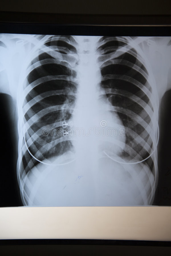 Röntgenstrahlfoto lizenzfreie stockfotografie