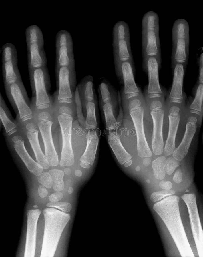Röntgenstrahlhände lizenzfreie stockbilder