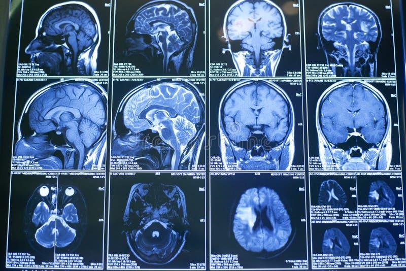 Röntgenstralen, de menselijke hersenen royalty-vrije stock fotografie