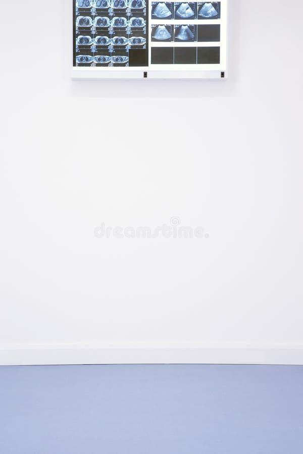 Röntgenstralen en ultra correcte resultaten die op muur hangen royalty-vrije stock afbeeldingen
