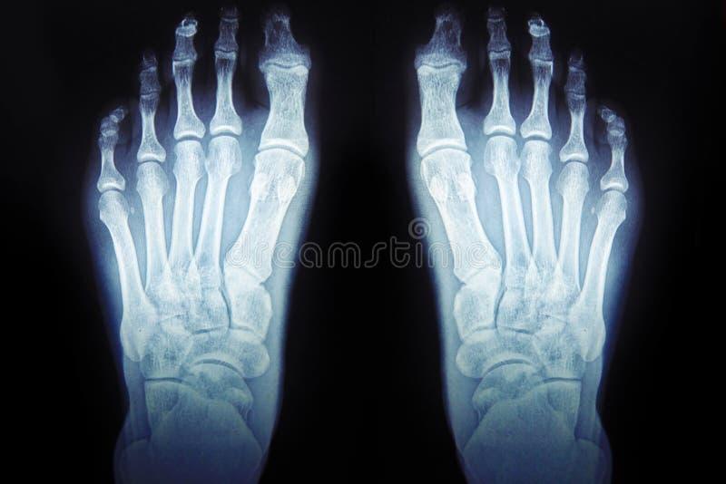 Röntgenstralen van de voet, menselijke voet medische diagnostiek stock foto