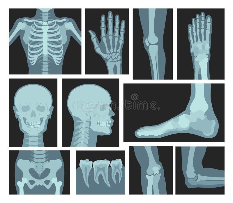 Röntgenstralen van menselijk lichaam, medische apparatuur stock illustratie