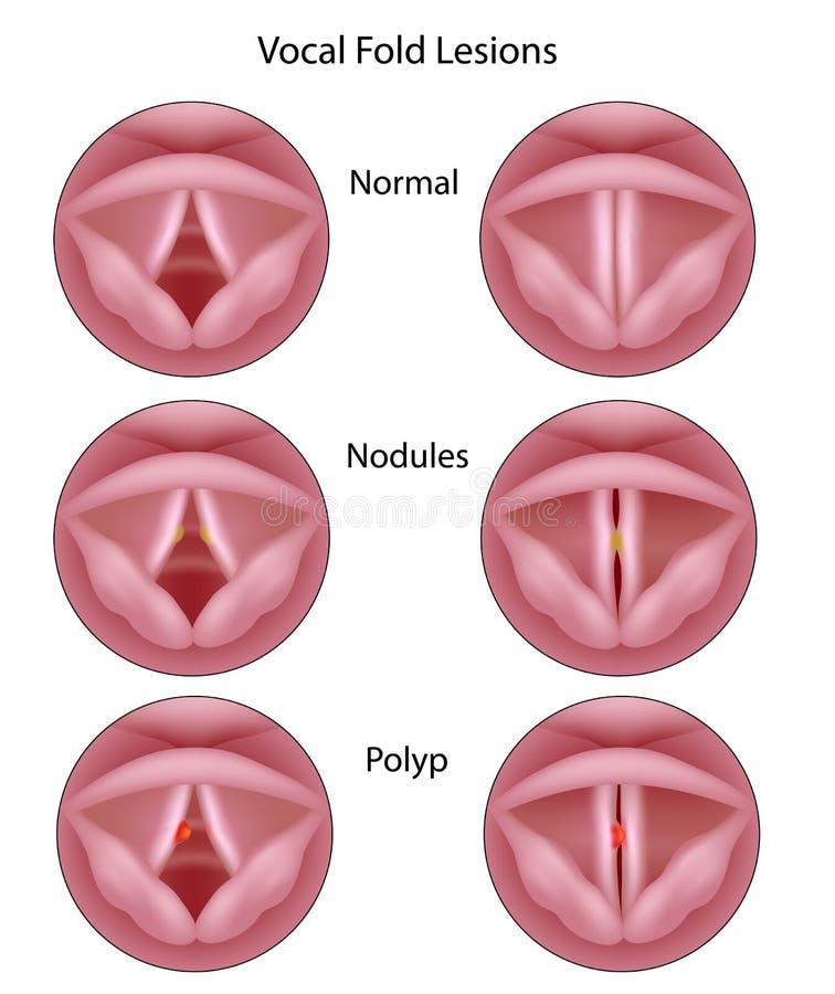 Röst- kabelorganskador royaltyfri illustrationer