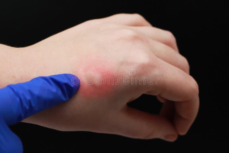 Rötung und itching auf dem Arm Der Doktor überprüft die Hand, auf der der Biss eines Insekts, ein Moskito stockbild