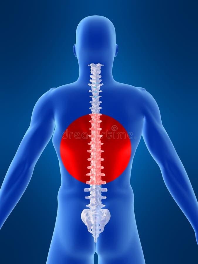 Rückenschmerzabbildung lizenzfreie abbildung