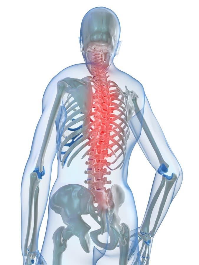 Rückenschmerzabbildung stock abbildung
