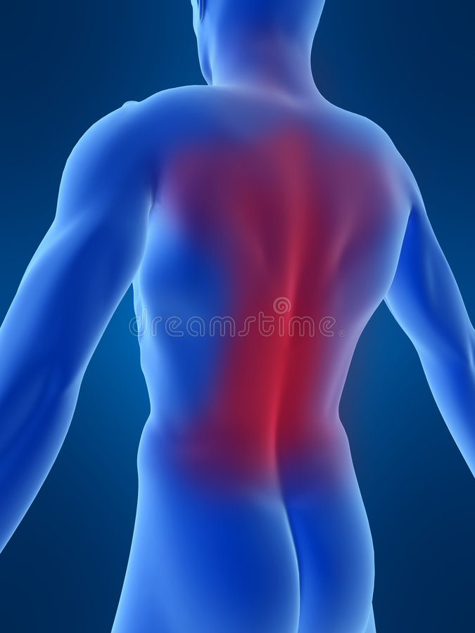 Rückenschmerzen vektor abbildung