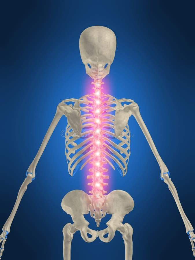 Rückenschmerzen stock abbildung