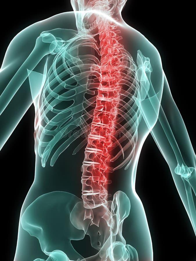 Rückenschmerzentzündung stock abbildung