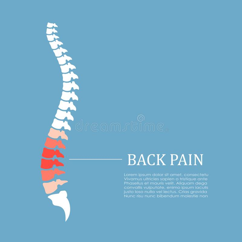 Rückenschmerzenvektorikone lizenzfreie abbildung