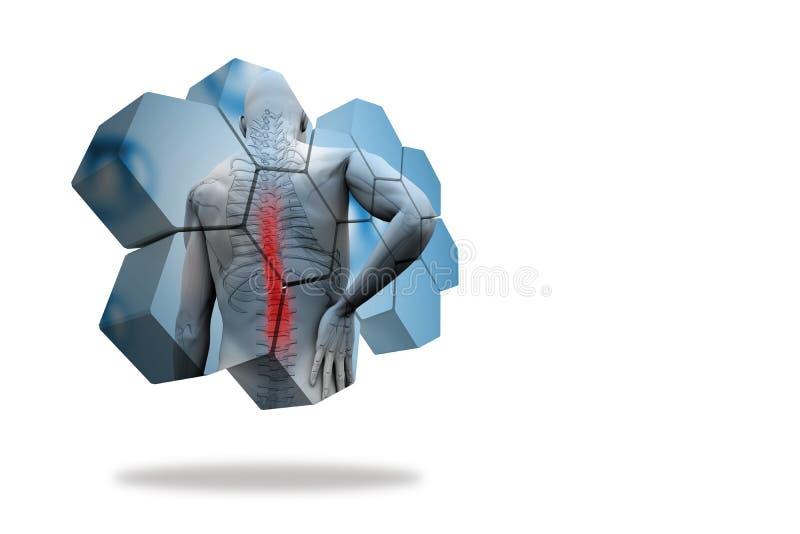 Rückenverletzungsdiagramm auf abstraktem Schirm stock abbildung