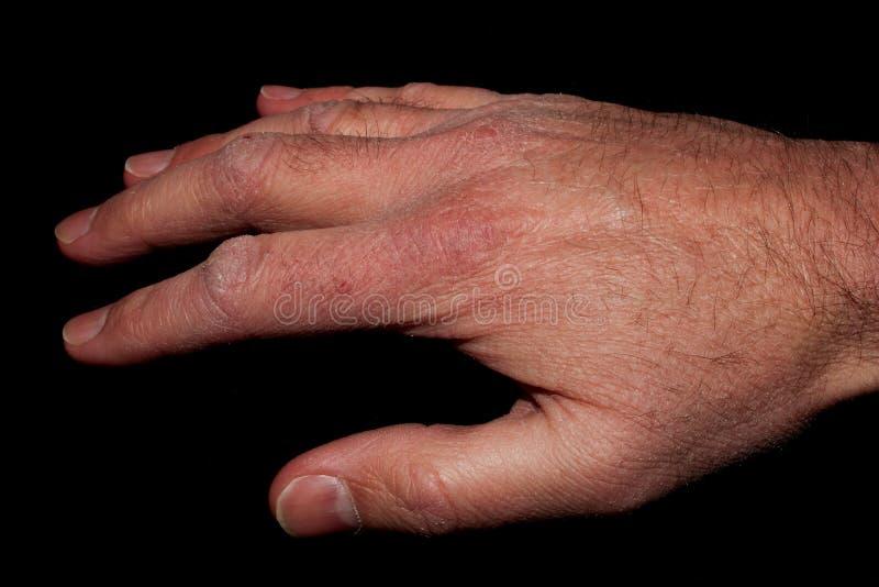 Ręka z Suchą skórą zdjęcia royalty free