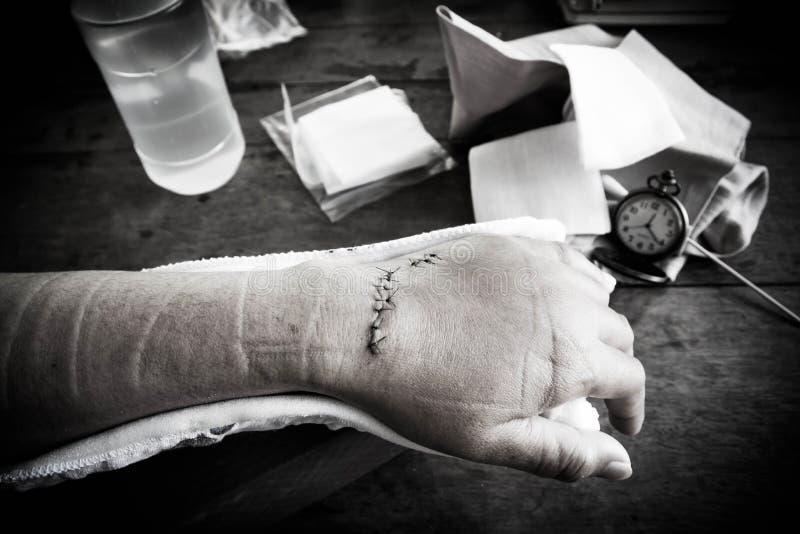Ręka zszywa ranę z zdyszanymi instrumentami obrazy stock