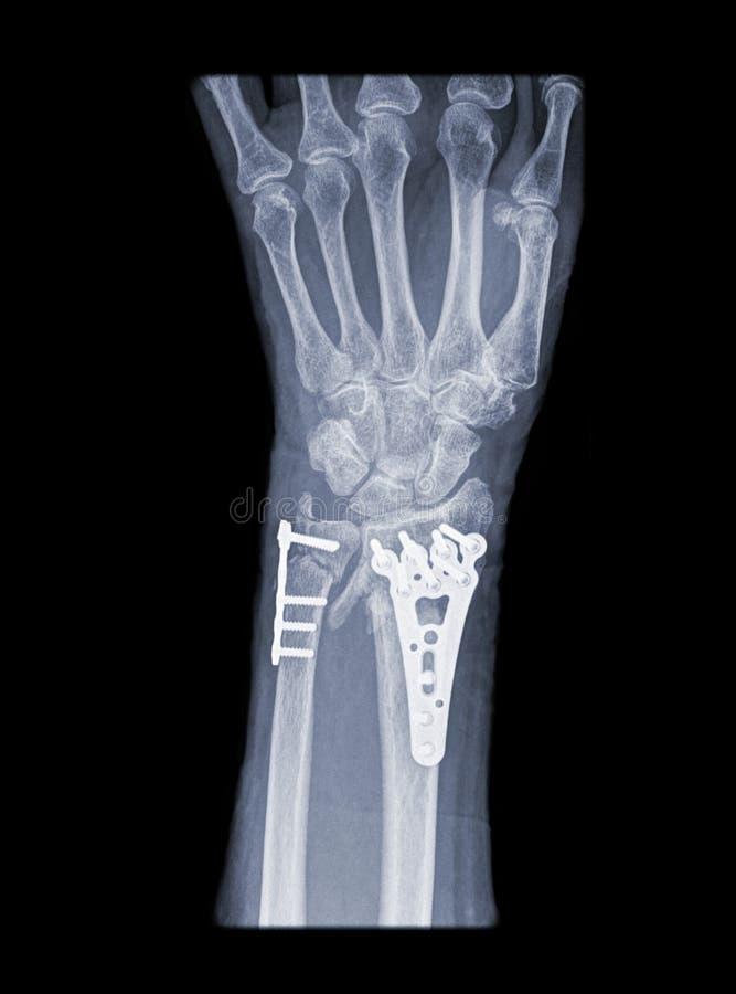 ręki promienia operacja x obraz stock