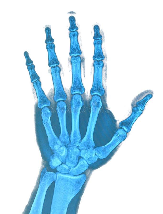 Ręki promieniowanie rentgenowskie zdjęcie royalty free