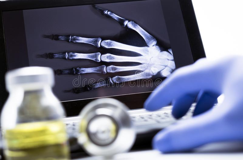 Ręki prześwietlenie w szpitalu obrazy stock