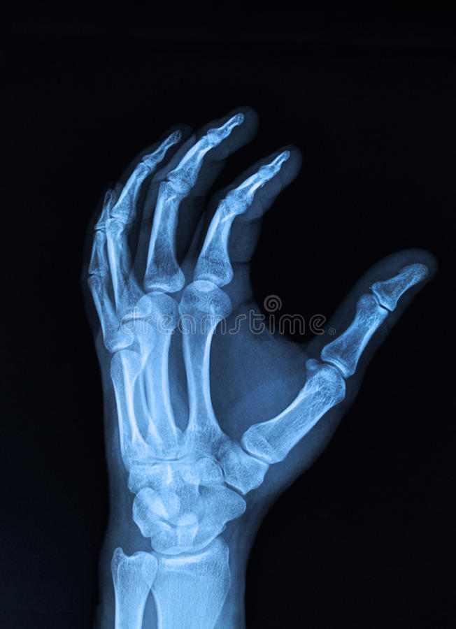 Ręki promieniowanie rentgenowskie obrazy stock