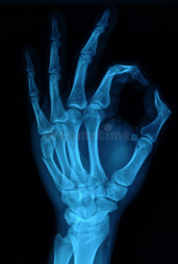 Ręki promieniowanie rentgenowskie zdjęcia royalty free