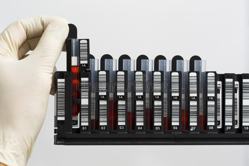 Rack with blood samples royalty free stock images