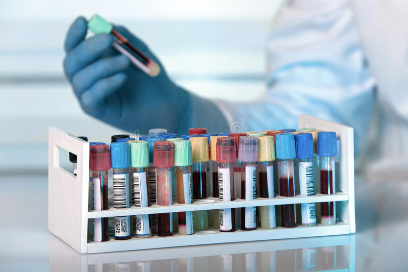 Rack with blood test tubes in clinical lab. Rack with collection blood samples in the laboratory / technician holding test tube with blood sample in clinical lab stock photos