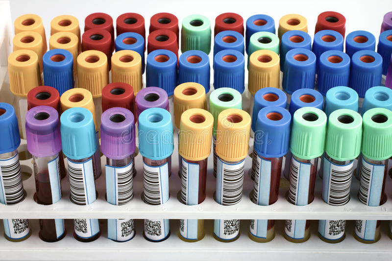 Rack of blood tubes labeled in blood bank lab. Tubes with bar code for analysis of blood samples in the hospital table / rack of blood tubes labeled in blood royalty free stock photos