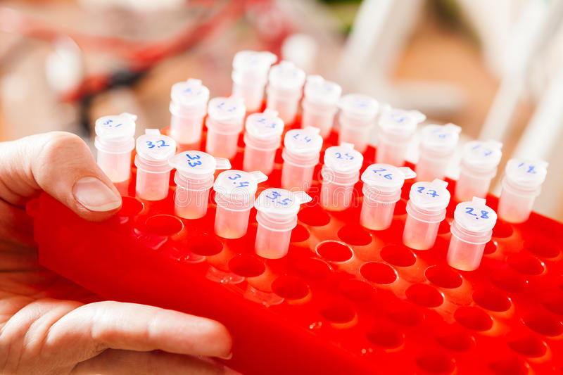 Download Rack of vials stock photo. Image of hand, test, process - 24832124