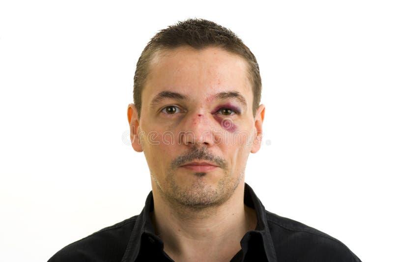 Radiatore anteriore e occhio nero rotti fotografia stock libera da diritti