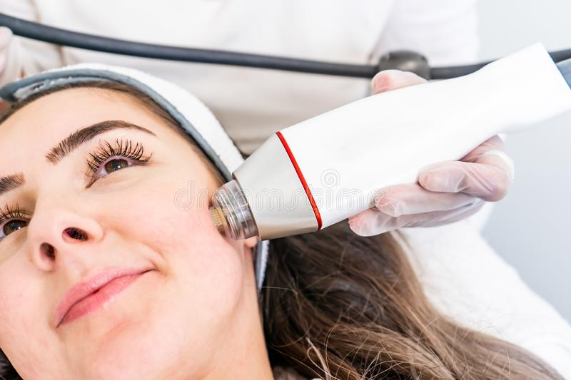 Radio frequency microneedling machine handpiece on the cheek of a woman`s face during a beauty skin tightening treatment. Radio frequency micro needling machine royalty free stock photo