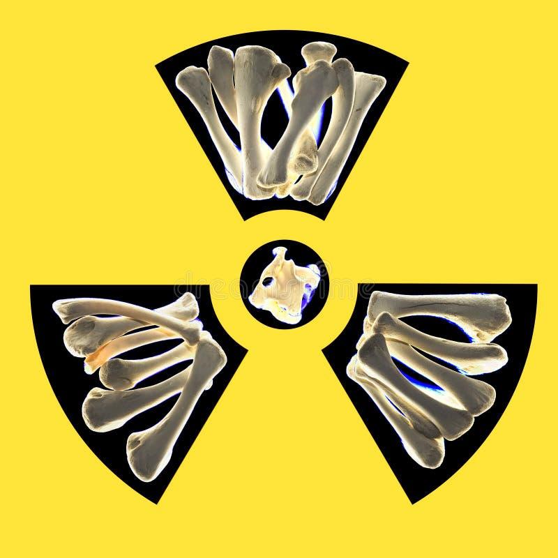 Radioactive bones