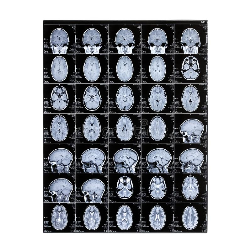 Radiografía aislada de la cabeza de un niño Proyección de imagen de resonancia magnética Imagen de la radiografía del cerebro Día fotos de archivo