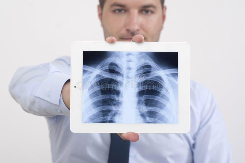 Radiografía antes del pecho humano imágenes de archivo libres de regalías