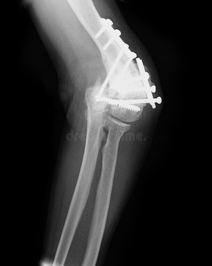 Radiografía dañada del codo foto de archivo libre de regalías
