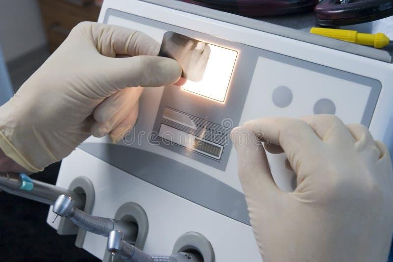 Radiografía de dientes humanos fotografía de archivo
