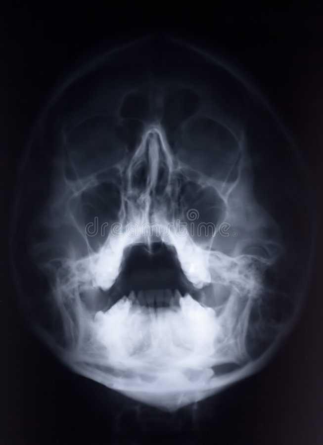 Radiografía de la cara fotos de archivo libres de regalías