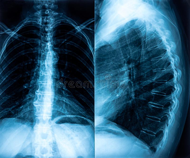 Radiografía de la espina dorsal fotografía de archivo libre de regalías