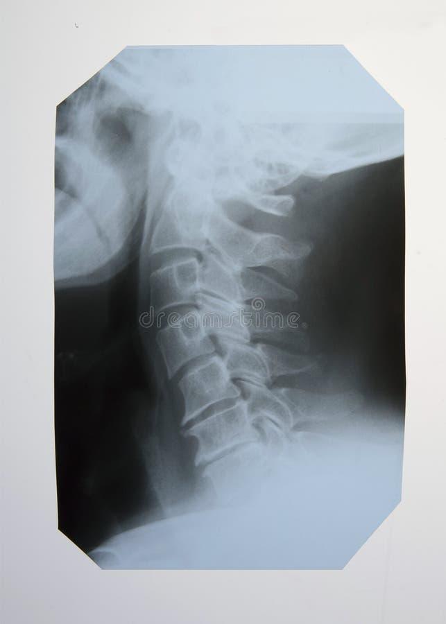Radiografía de la espina dorsal y de la espina dorsal cervical fotografía de archivo libre de regalías