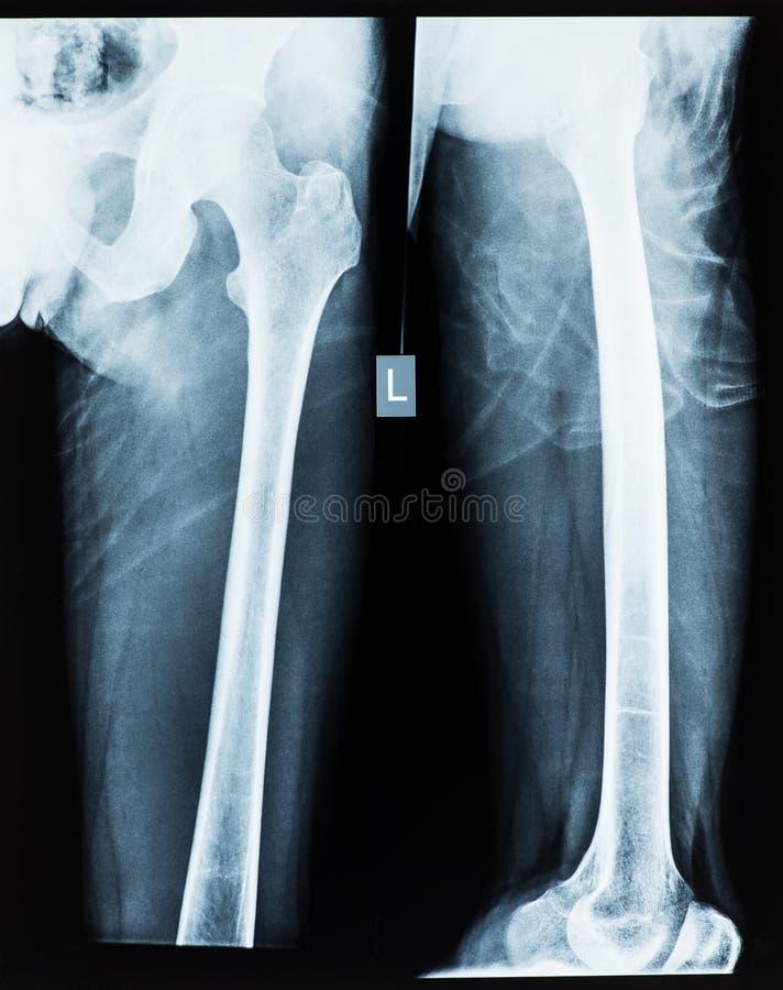 Radiografía de la junta de cadera imágenes de archivo libres de regalías