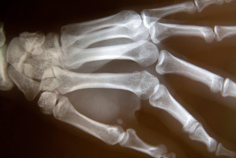 Radiografía de la mano fotos de archivo