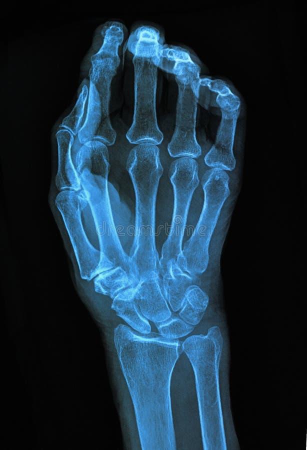 Radiografía de la mano foto de archivo libre de regalías